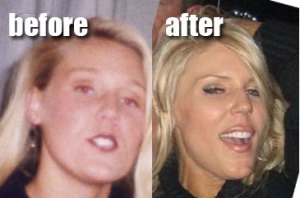 gretchen-rossi-before-and-after
